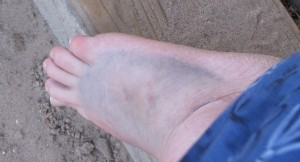 Foot stomped by donkey.
